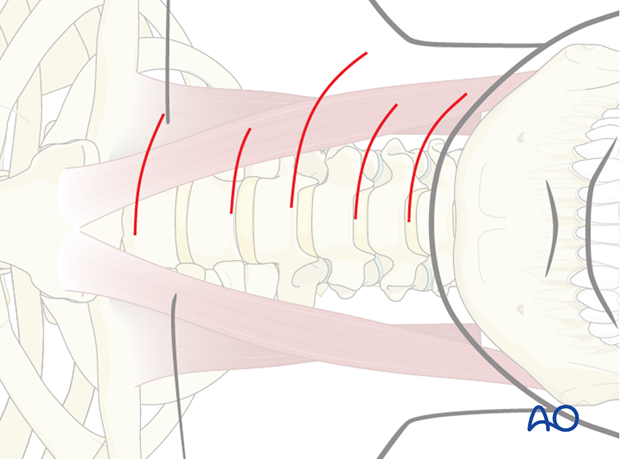 anterior approach to the cervical spine