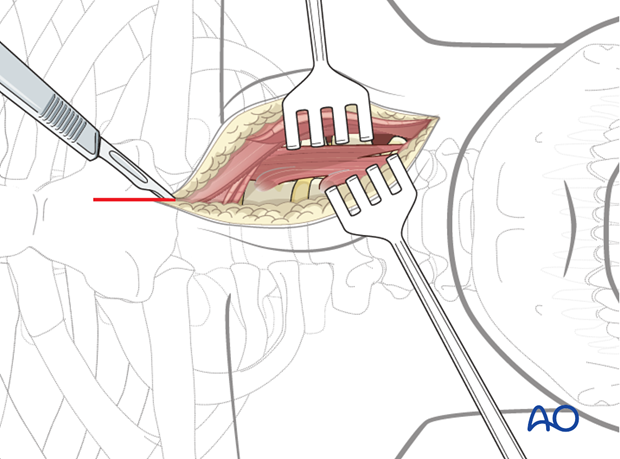 anterior approach to the cervico thoracic junction