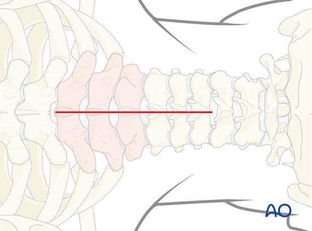 posterior access to the thoraco cervical junction