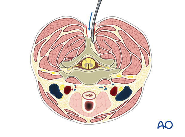 posterior approach to the cervical spine