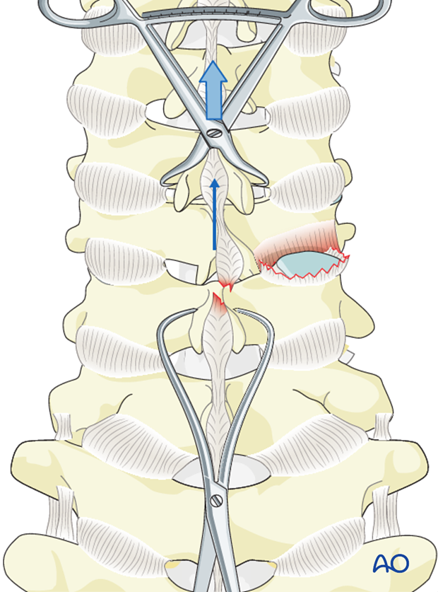 cervical spine posterior fixation