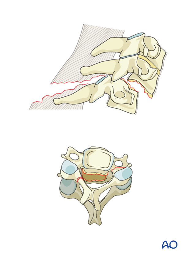 combined anterior and posterior 360