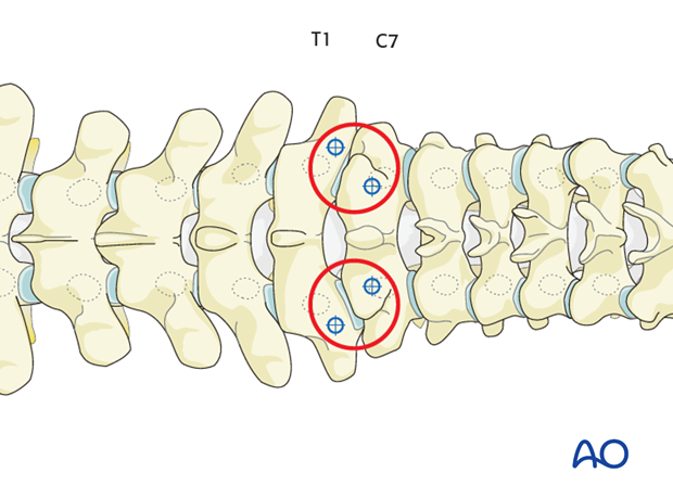 pedicle screw insertions t1  t3
