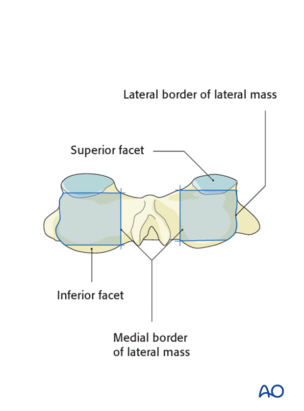 lateral mass screw insertion magerl technique