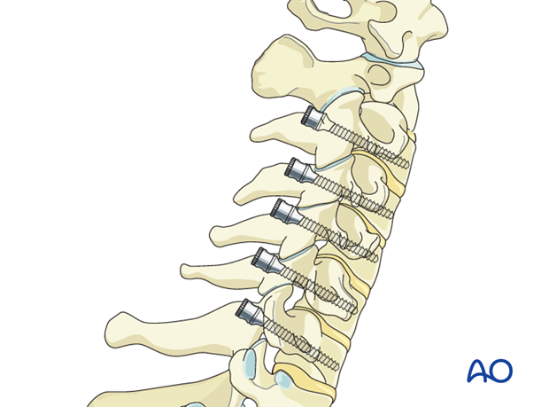 cervical pedicle screw insertion