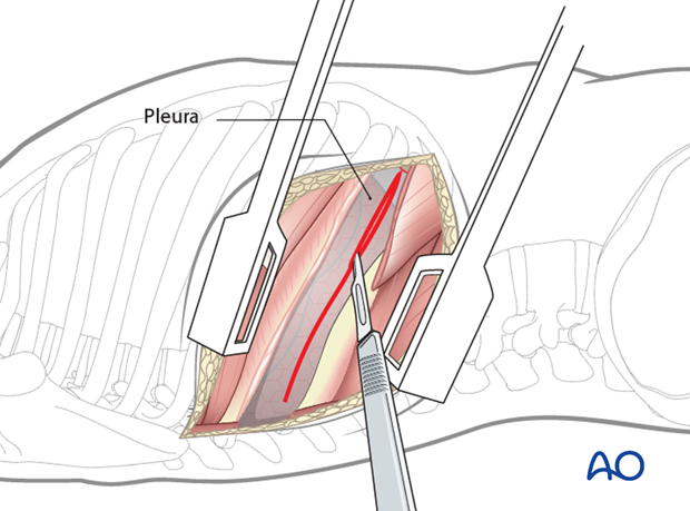 Thoracic and lumbar fractures: Right sided thoracotomy (T3-T10)