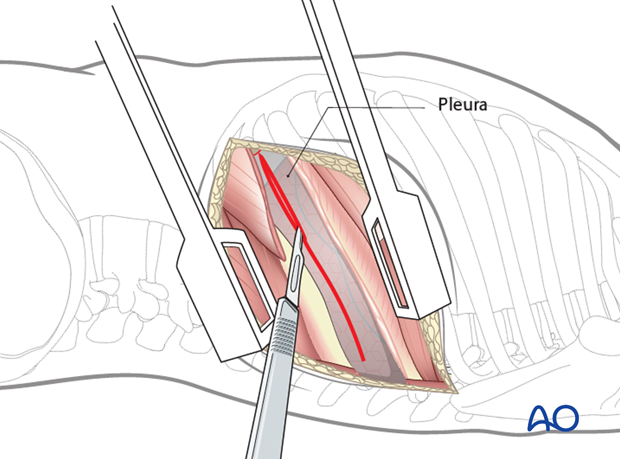 Thoracic and lumbar fractures: Left sided thoracotomy (T3-L1/2)