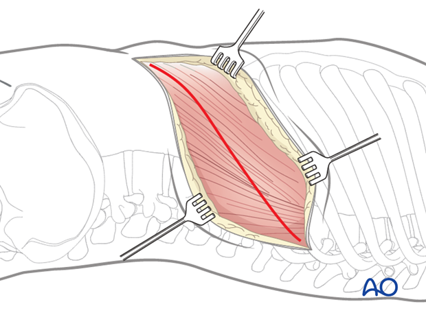 Thoracic and lumbar fractures: Left sided thoracolumbar junction approach (T10-L2)