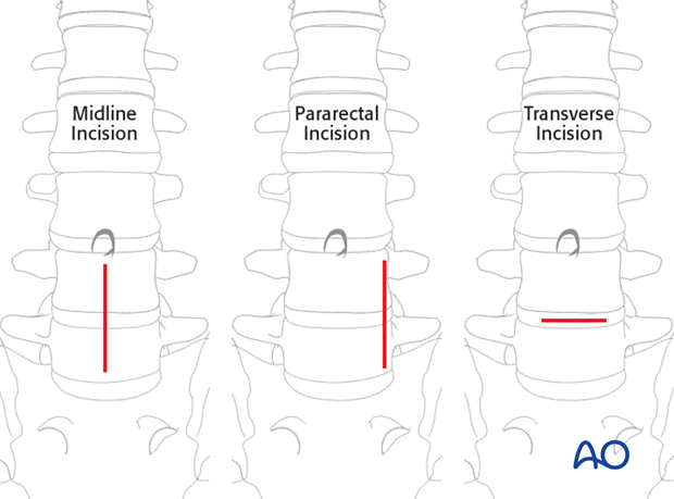Thoracic and lumbar fractures: Mini open retroperitoneal approach (L4-S1)
