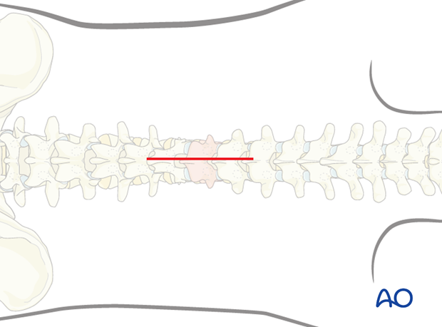 posterior short segment fixation with pedicle screws