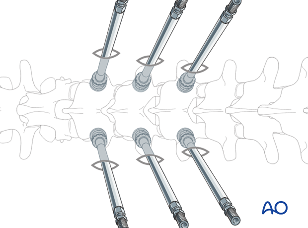 percutaneous posterior approach for pedicle screw placement