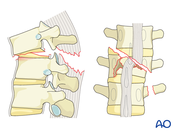Diagnosis Thoracic and Lumbar Fractures: C – displacement or dislocation