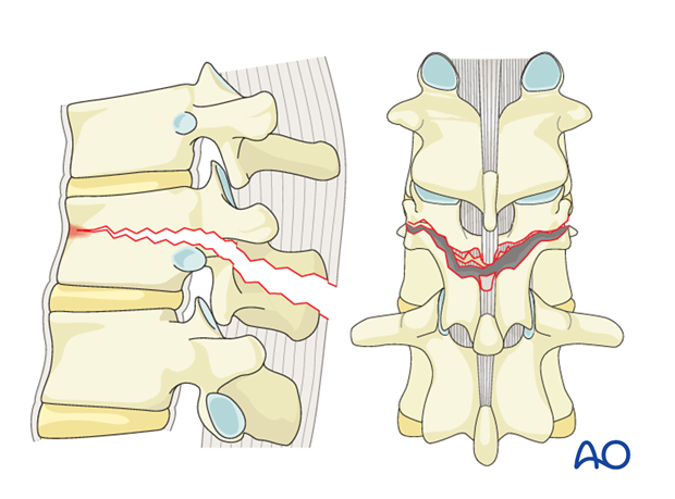Thoracic and Lumbar Fractures: Rationale for fracture classification
