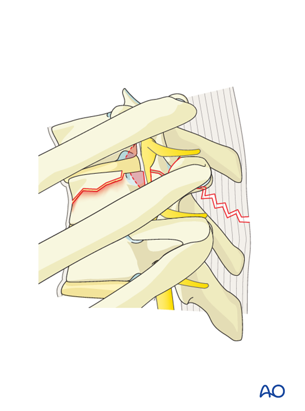 Thoracic and lumbar fractures: Anterior stabilization