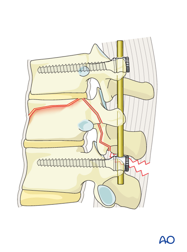 Thoracic and lumbar fractures: Posterior short segment fixation with pedicle screws