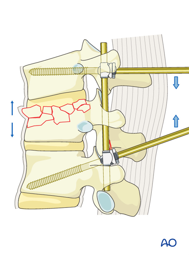 Thoracic and lumbar fractures: Posterior short segment fixation with Schanz pins