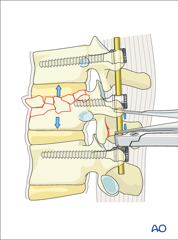 Thoracic and lumbar fractures: Posterior short segment fixation with intermediate screws (PSSF-IS)