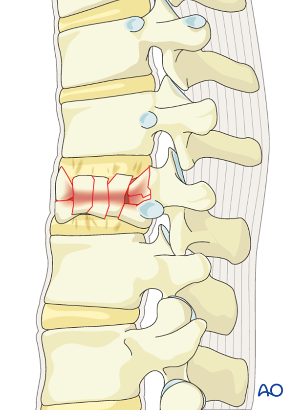 Thoracic and lumbar fractures: Posterior long segment fixation