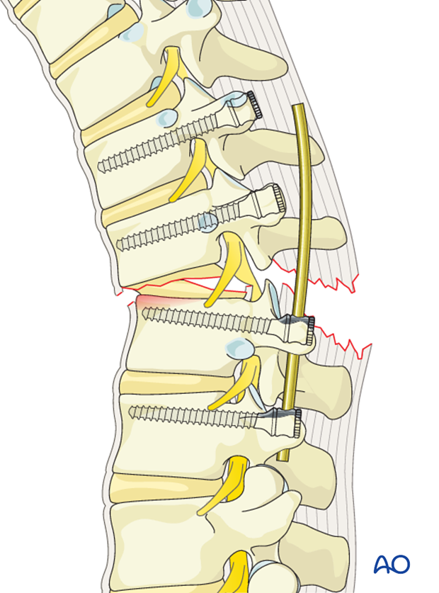 Thoracic and lumbar fractures: Posterior long segment fixation (type C fractures)