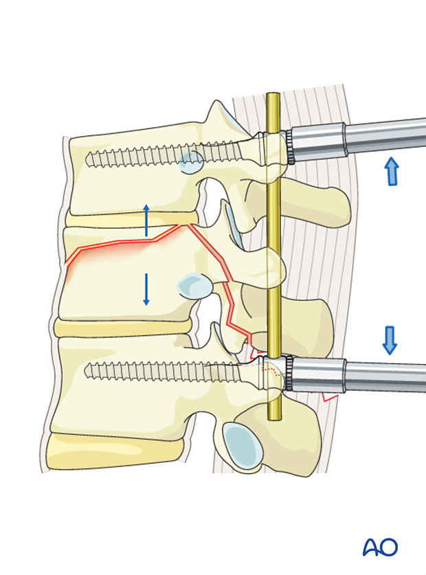 Thoracic and Lumbar fractures: MIS posterior short segment fixation with pedicle screws
