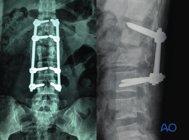 Thoracic and lumbar fractures: Aftercare for posterior procedures