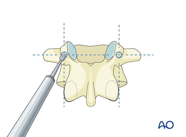 pedicle screw insertion