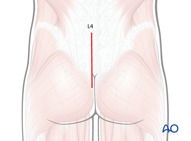 posterior midline approach to the sacrum