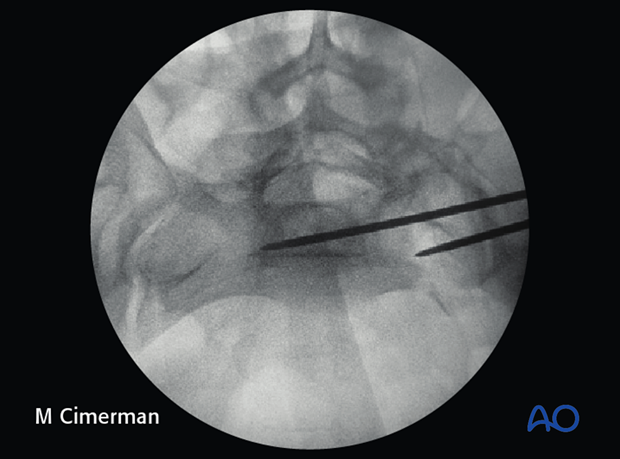 iliosacral screw insertion