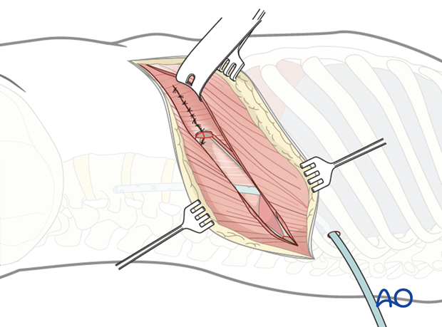anterior approach to the lumbar spine