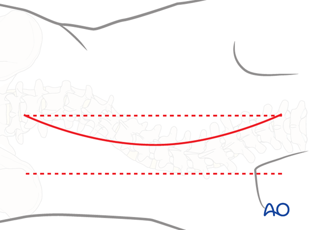 posterior approach