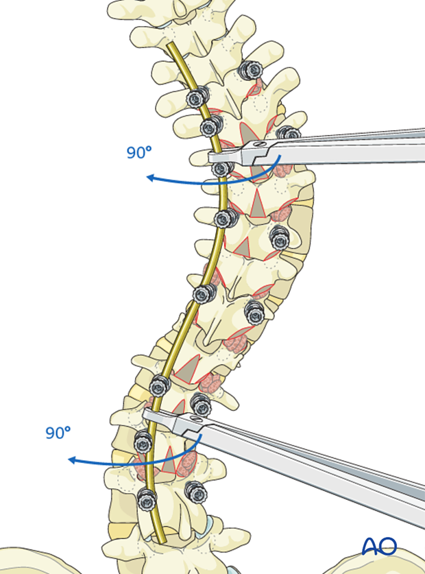 AIS Lenke 3 Posterior pedicle screws - Rod rotation