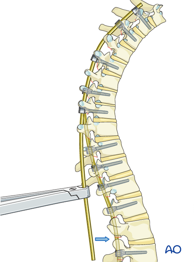 AIS Lenke 4 Posterior pedicle screws - Rod placement