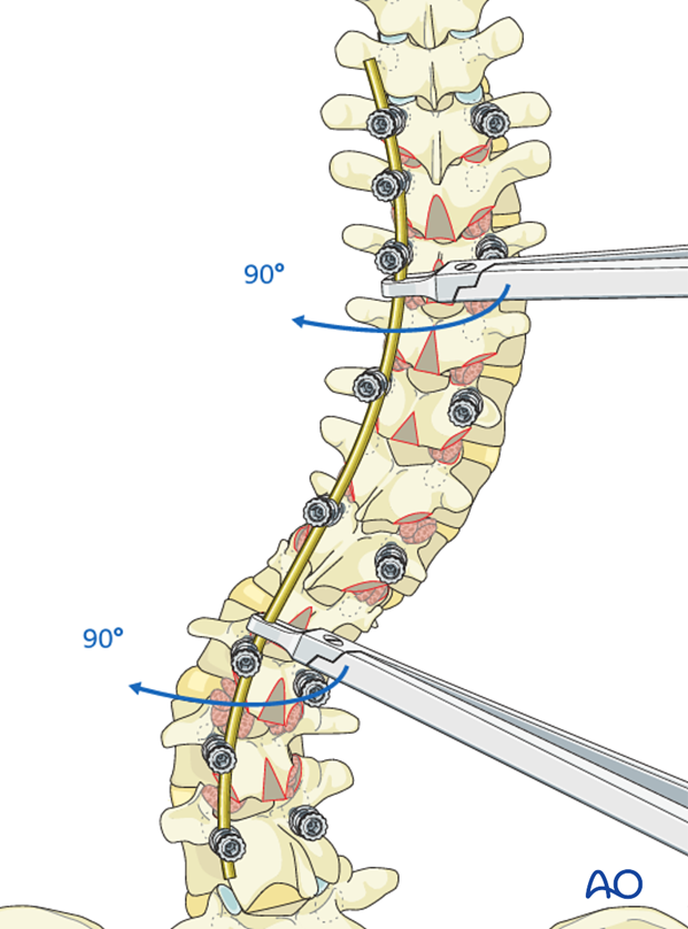 AIS Lenke 5 Posterior pedicle screws - Rod rotation