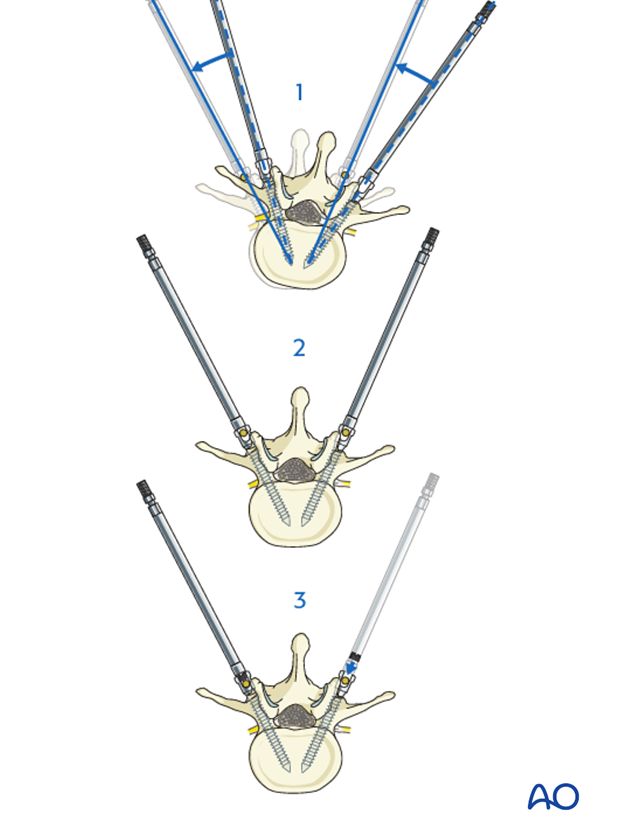 AIS Lenke 3 Posterior pedicle screws - Apical derotation
