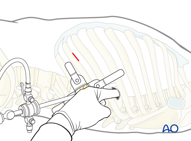 minimally invasive left side thoracic approach