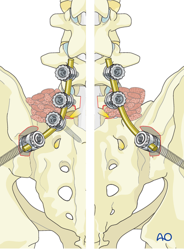 posterior fusion of l4 s1 with or without pelvic fixation or ala