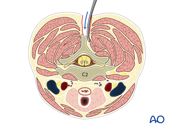posterior access to the occipitocervical spine