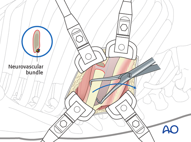 Thoracic and lumbar pathologies: Right sided thoracotomy (T3-T10)