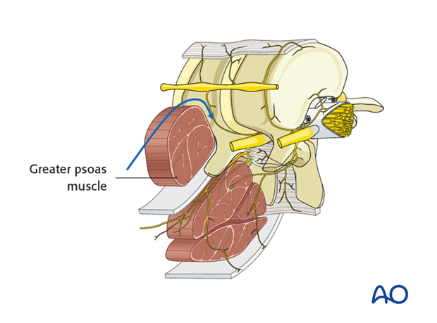 Thoracic and lumbar pathologies: Minimally invasive lumbotomy (L2-L4)