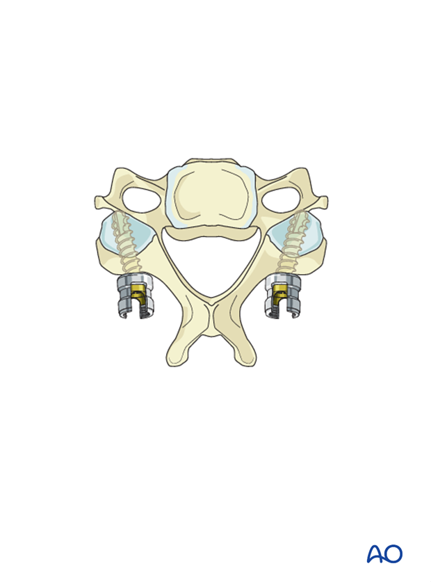 occipitocervical fusion