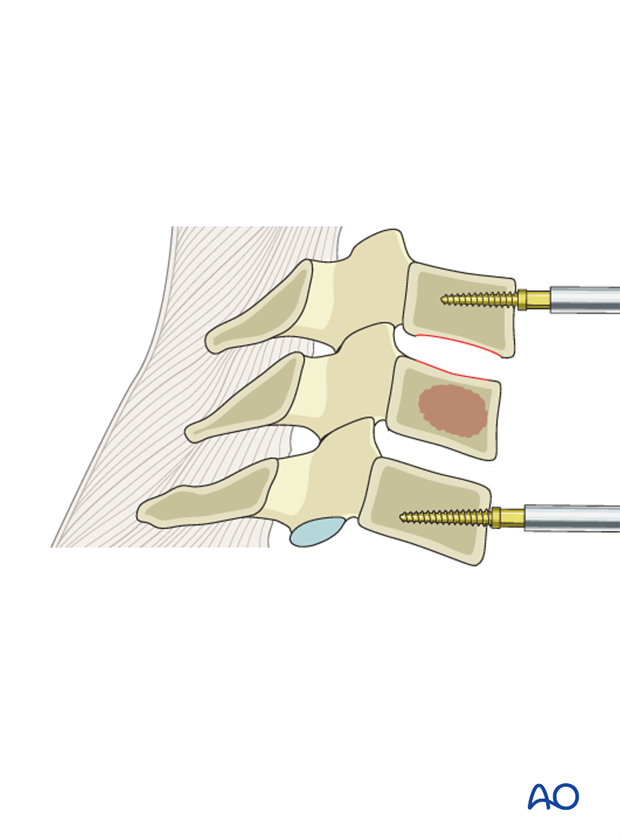 anterior decompression and stabilization