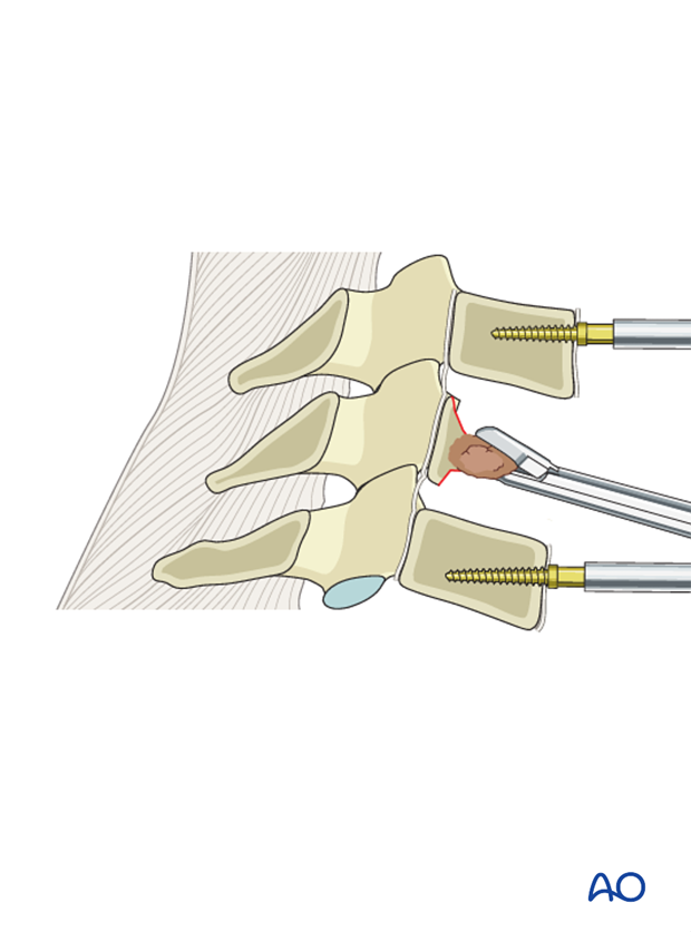 anterior decompression and stabillzation