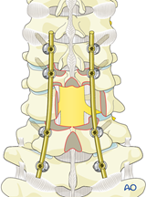 subaxial cervical unstable high escc
