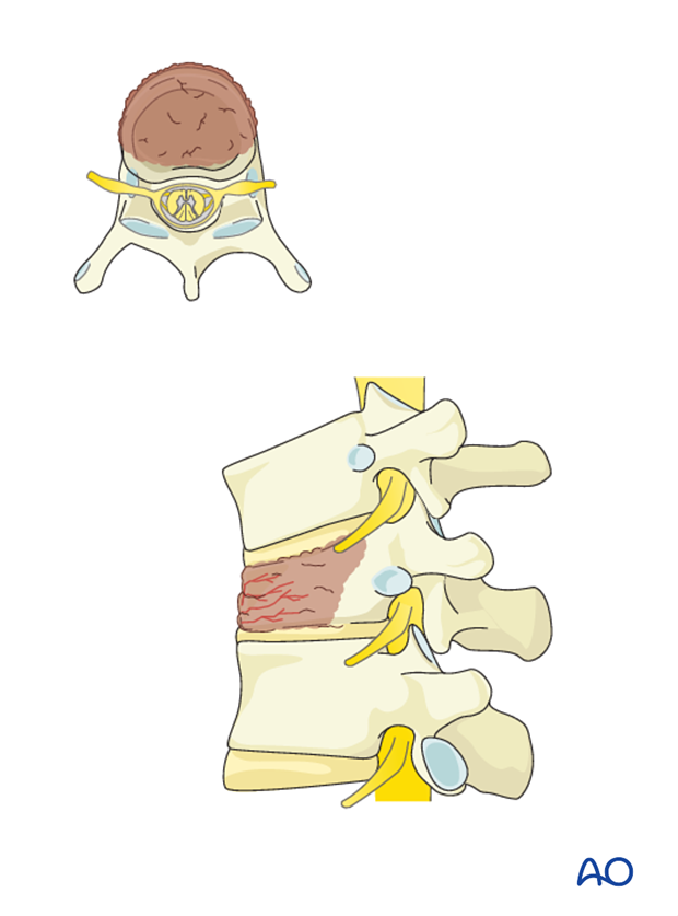 anterior corpectomy and stabilization