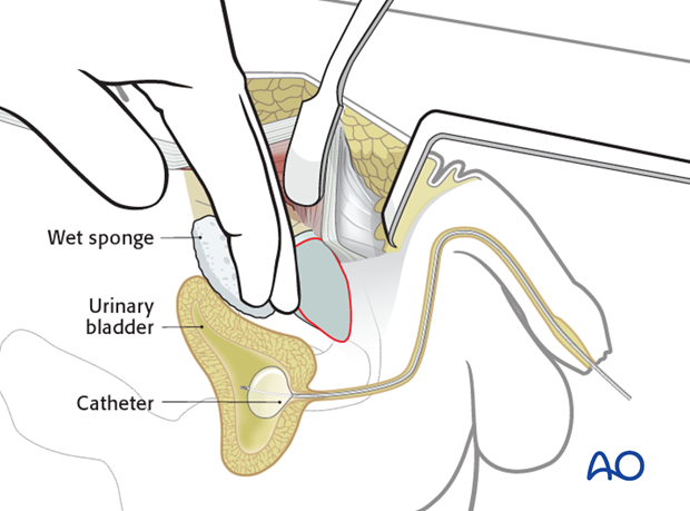 approach to the pubic symphysis