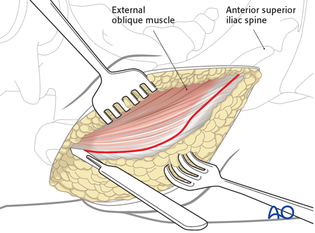 anterior approach to the iliac wing and si joint