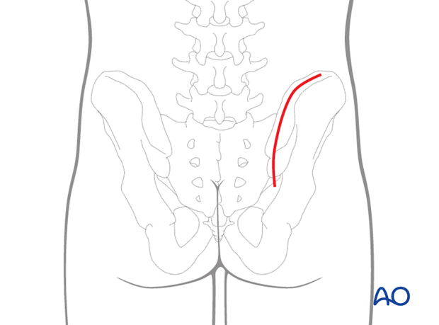 posterior approach to the si joint