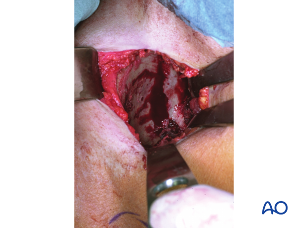 Intraoperative view