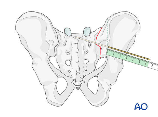 mio iliosacral screw for sacrum
