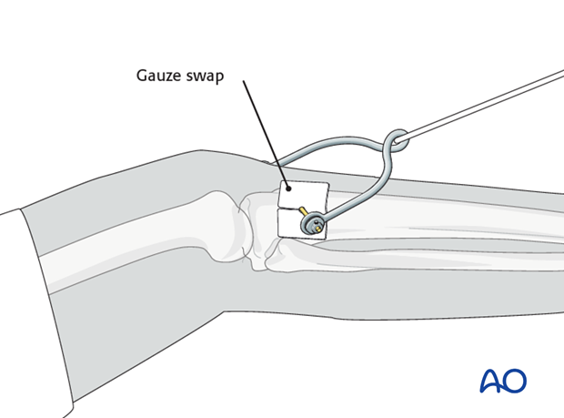 external fixation and traction
